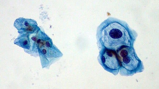 cancer colon liver lung