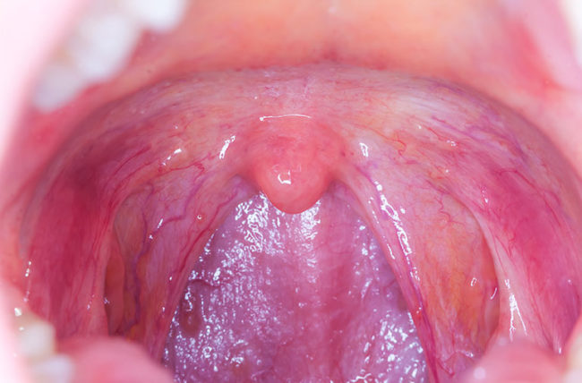 human papillomavirus on throat