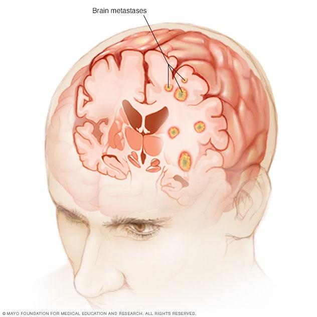 cancer pulmonar y metastasis cerebral