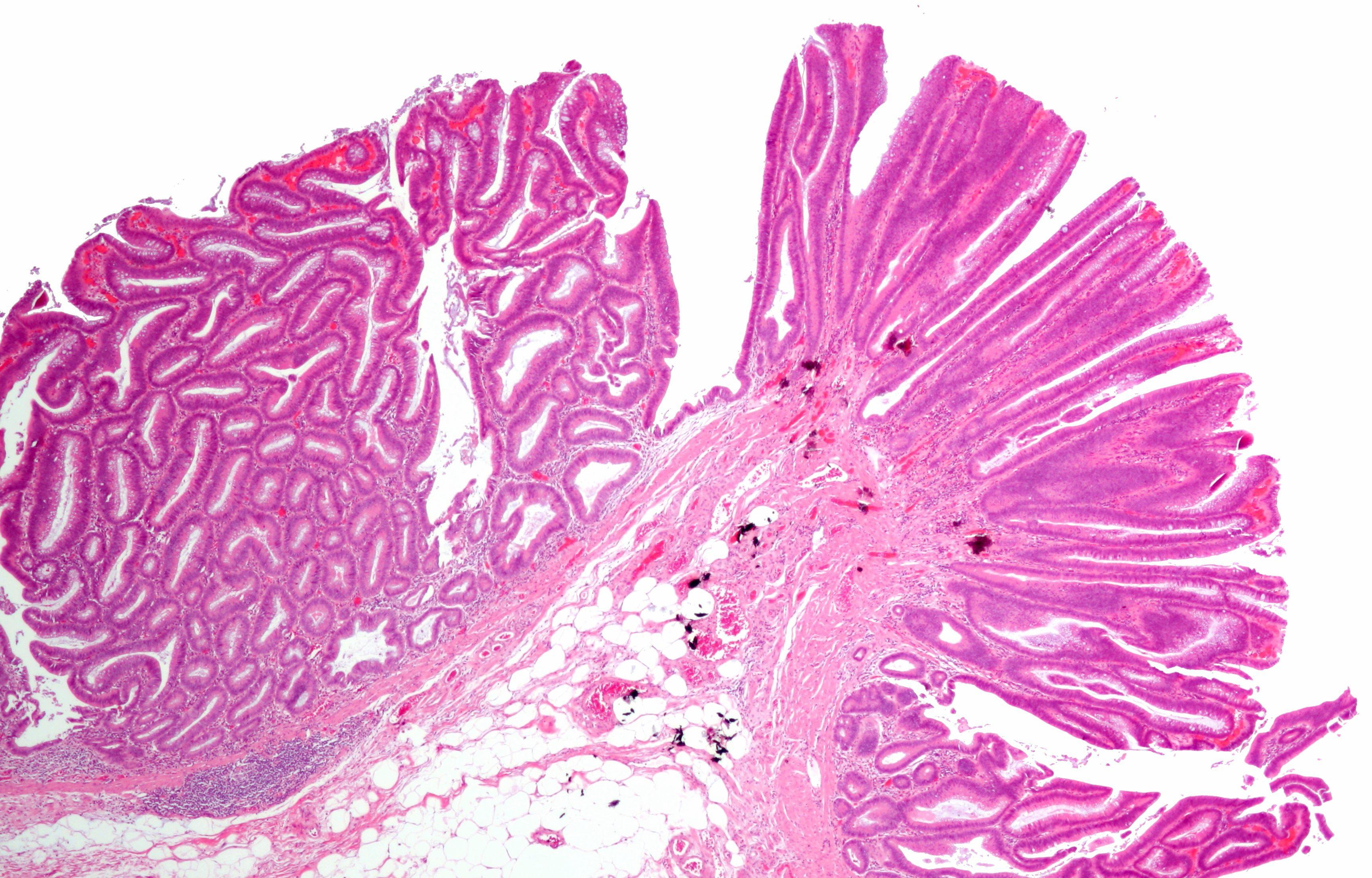 Boli de piele - articole despre dermatologie