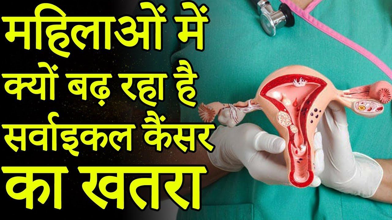 cancer cervical ka ilaj que es el papiloma juvenil