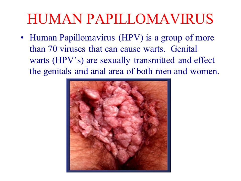 wart virus sexually transmitted squamous cell papilloma nasal
