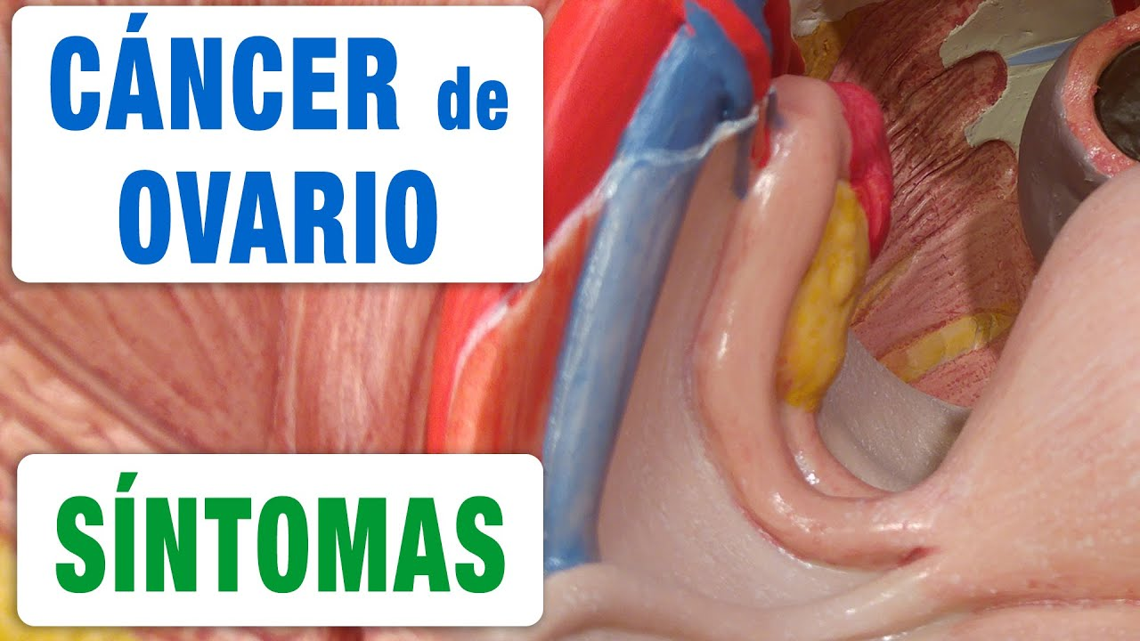 virus papiloma humano cancer de ovario