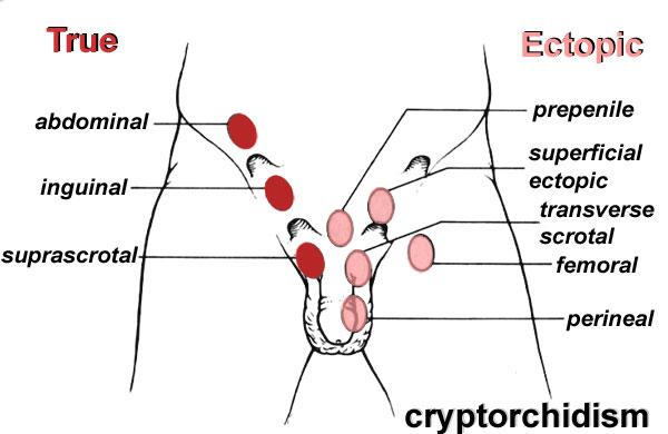 cancer testicul necoborat
