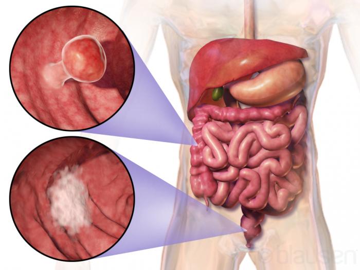 cancer biliar etapa 4
