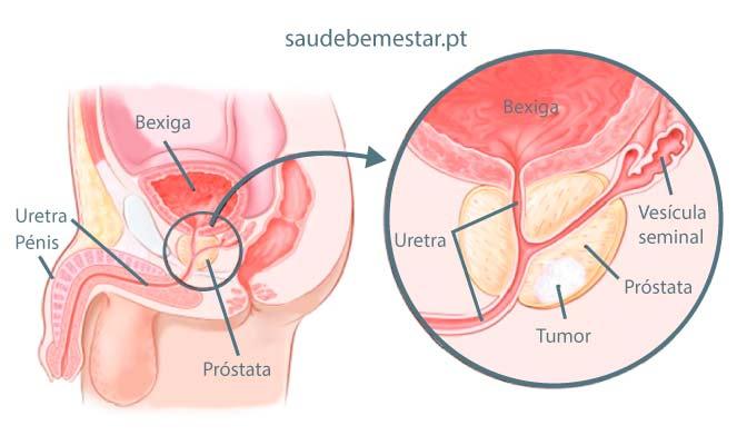 Cancer de vezica urinară - Tot ce trebuie să ştii | Cancer