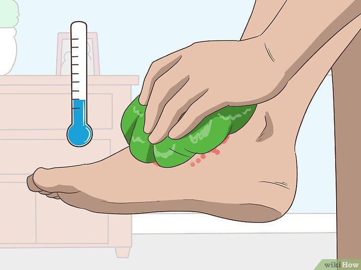 squamous papilloma cure ce este helmintiaza