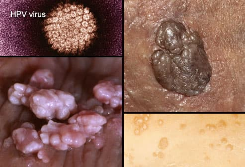 hpv with herpes