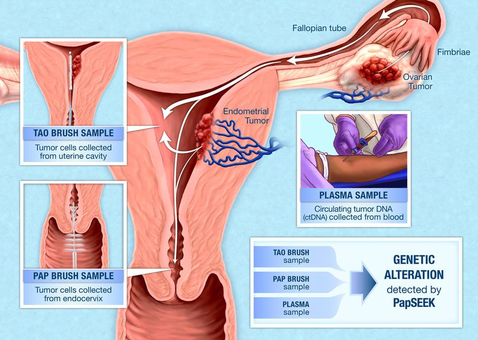 endometrial cancer detection cancer de pancreas no inicio tem cura