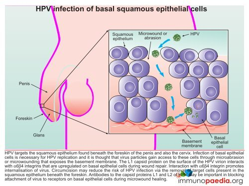hpv squamous epithelial cells hpv traverse preservatif
