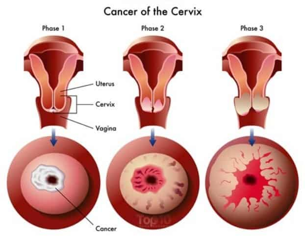 hpv early stage cervical cancer hpv warts dormant