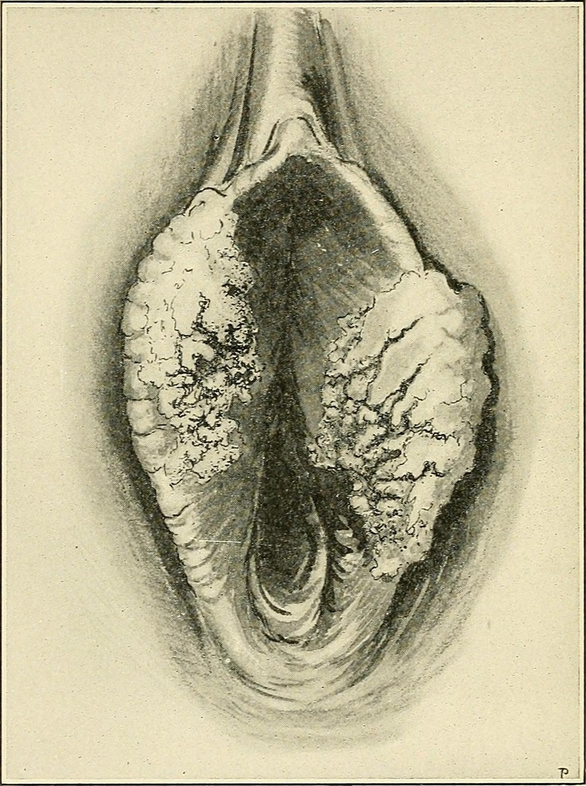 Cancerul vulvar - tipuri, simptome si tratament