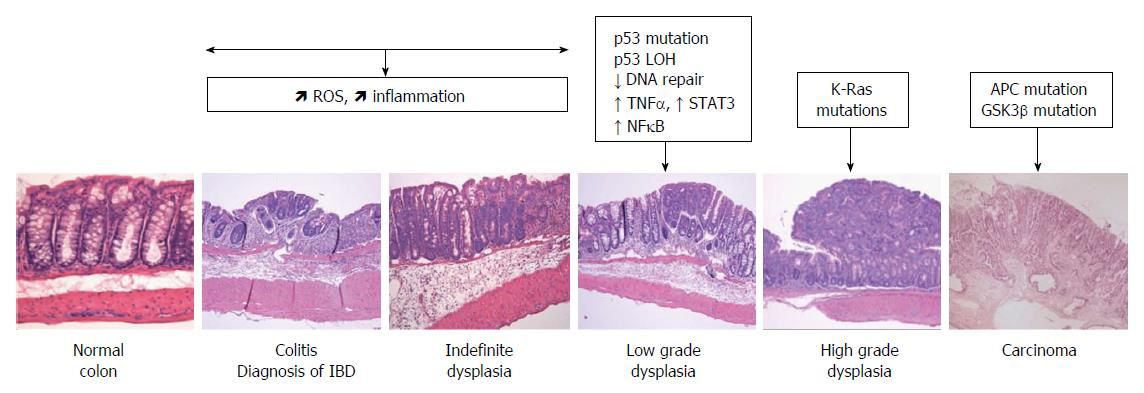 Neoplasm - Wikipedia
