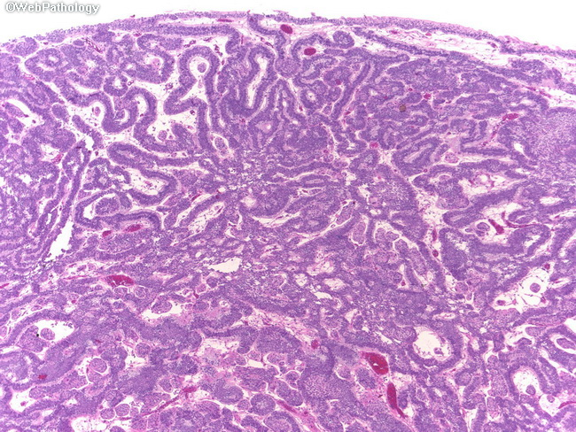 inverted urothelial papilloma histology