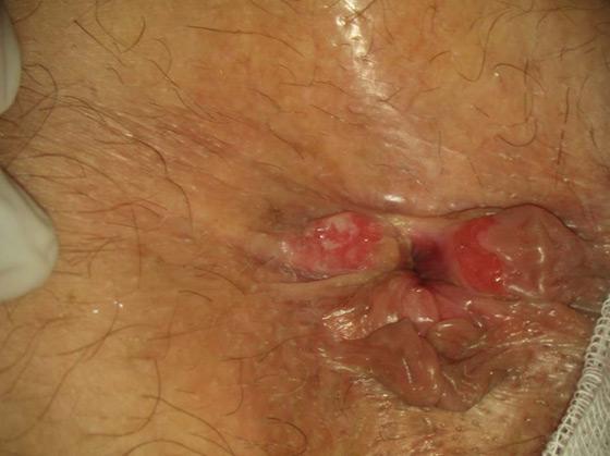papillomavirus sans condylome