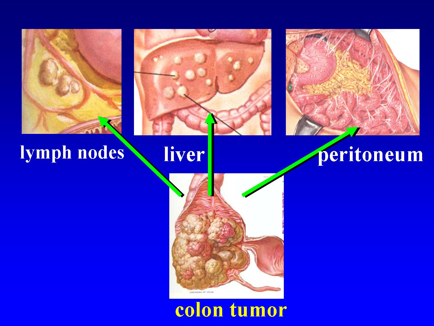 peritoneal cancer nhs