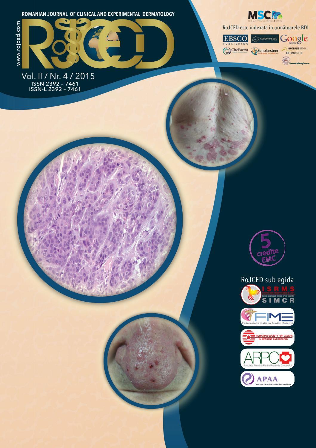 condyloma acuminata tratament papiloma nasal ivertido