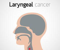 Cancerul laringian - prezentare de caz
