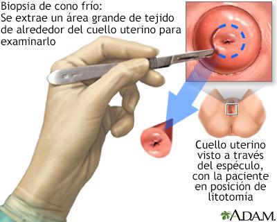 virus del papiloma humano biopsia