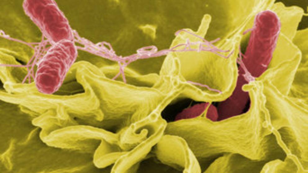 cancer colon jovenes paraziti u organizmu simptomi