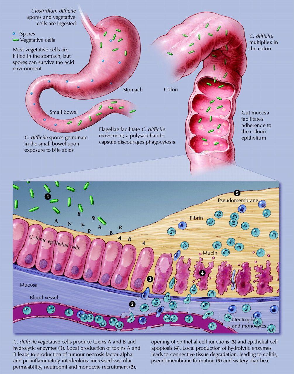 clostridium toxina b