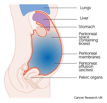 Cancerul trompelor uterine