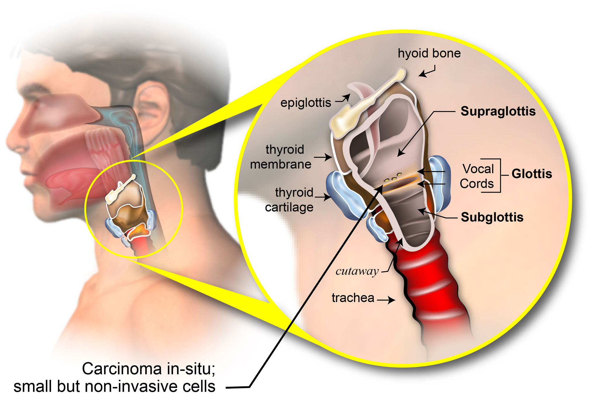 can hpv throat cancer spread to lungs