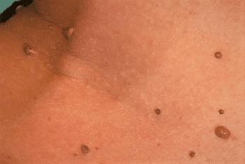 papillom entfernen mittel virus papiloma humano hombres contagio