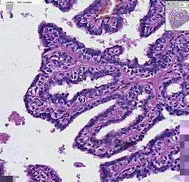 ductal papilloma pathology outline pancreatic cancer color ribbon