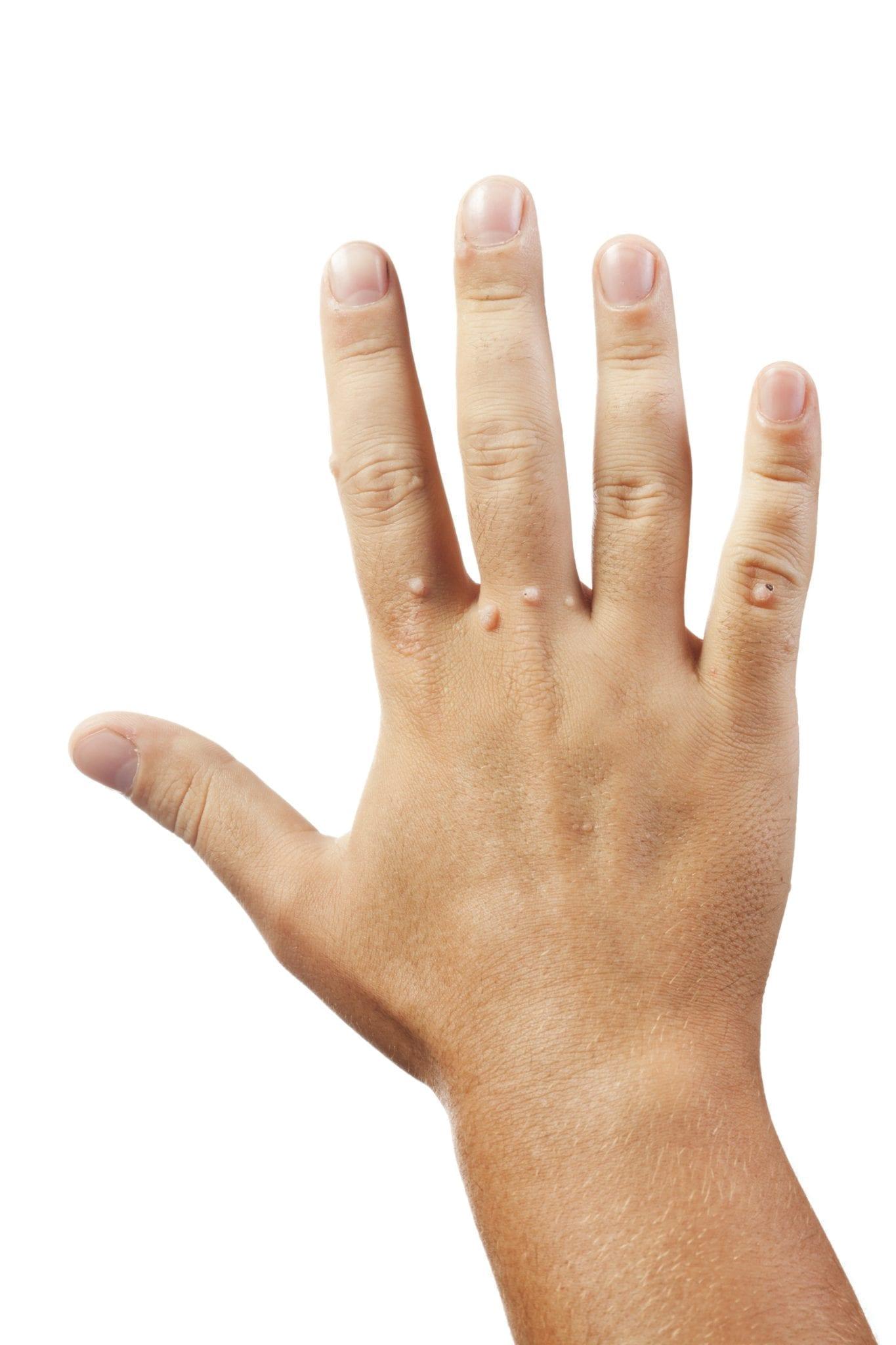 genital hpv hands