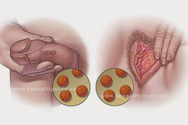 sintomas de papiloma en ano uvula papillom entfernen
