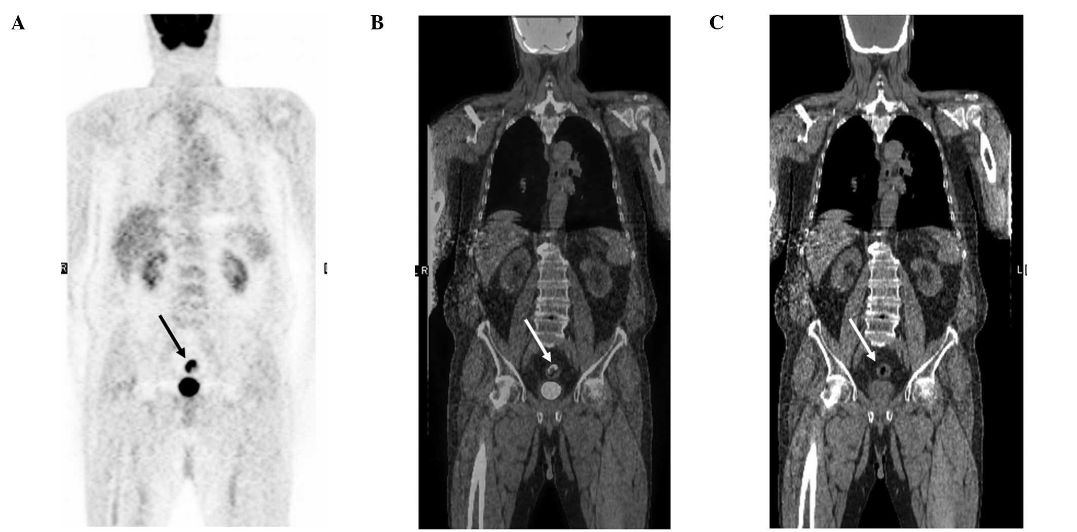 cancer colon pet scan