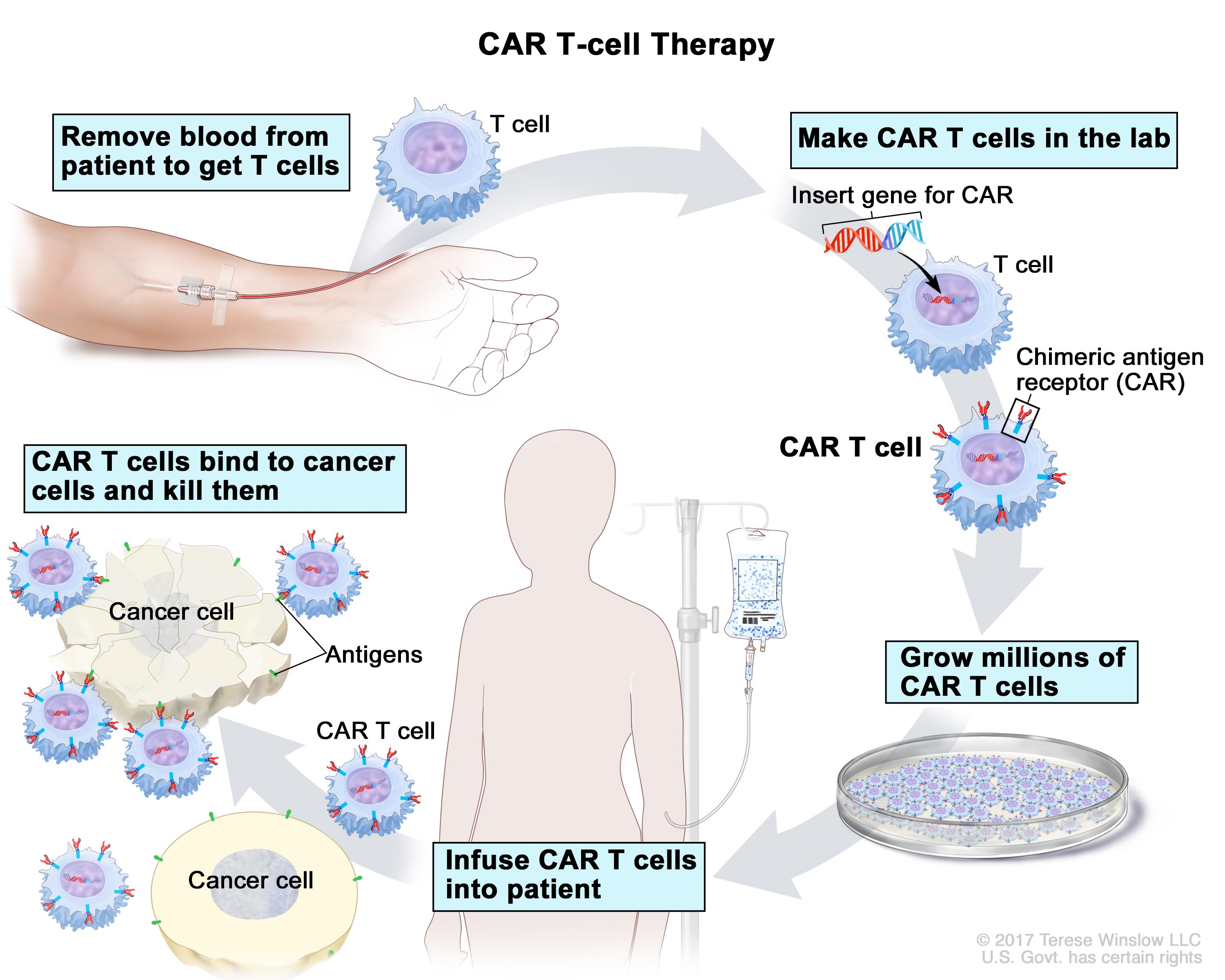 cancer sarcoma treatment