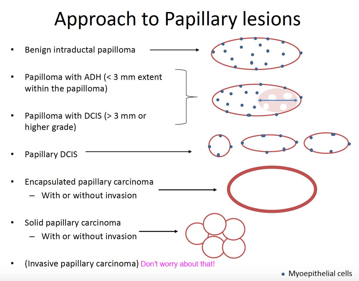 papillary lesion breast cancer
