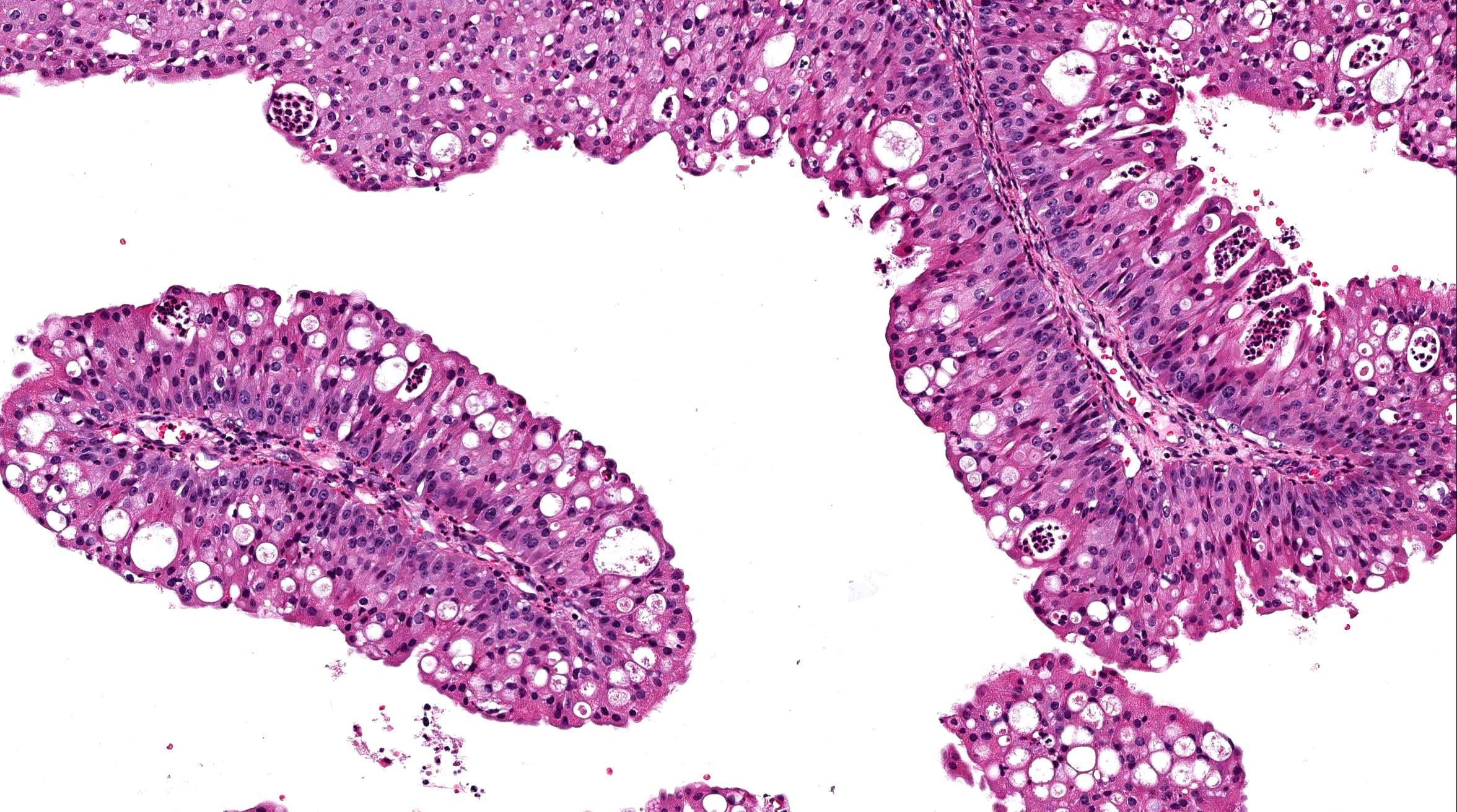 nasal papilloma icd 10
