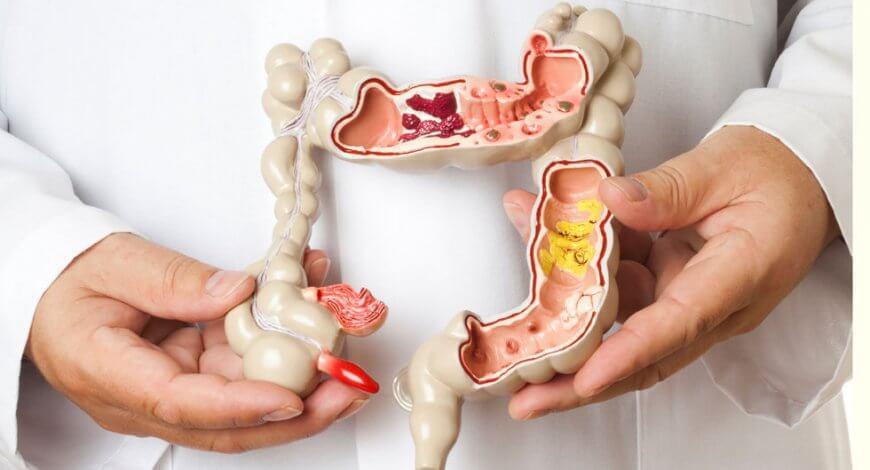 probleme cu respiratia urat mirositoare papilloma esophagus pathology