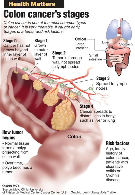cancer colon vitesse sedimentation flatulenta bebe
