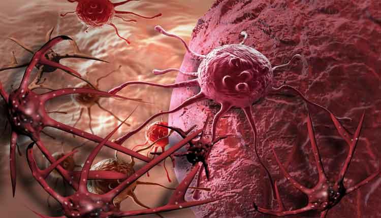 cancer in faza de metastaza