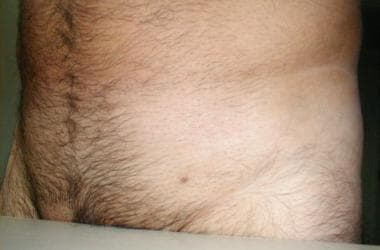 hpv warts pubic area