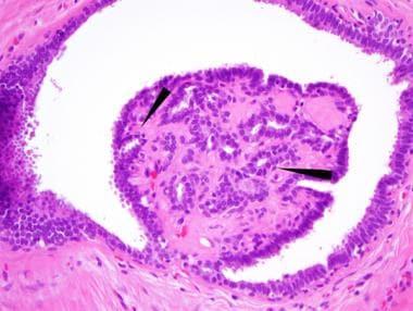 hpv ne demektir vph virus del papiloma humano en hombres