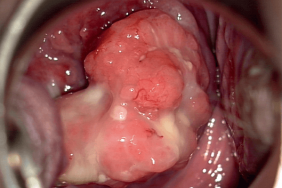 papillomavirus suite accouchement