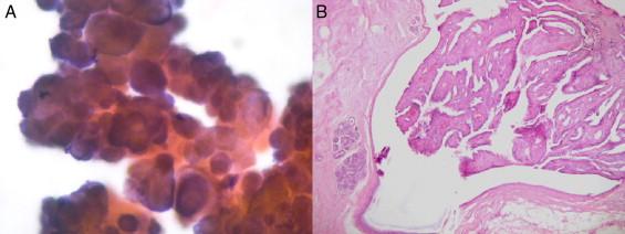 papiloma ductal mama caracteristica del papiloma humano