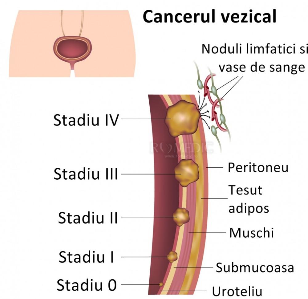 simptome cancer vezica urinara genetic cancer blood