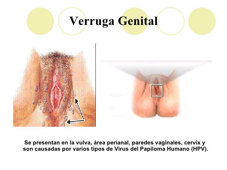 simptome cancer mamar la barbati hpv treatment with vitamins