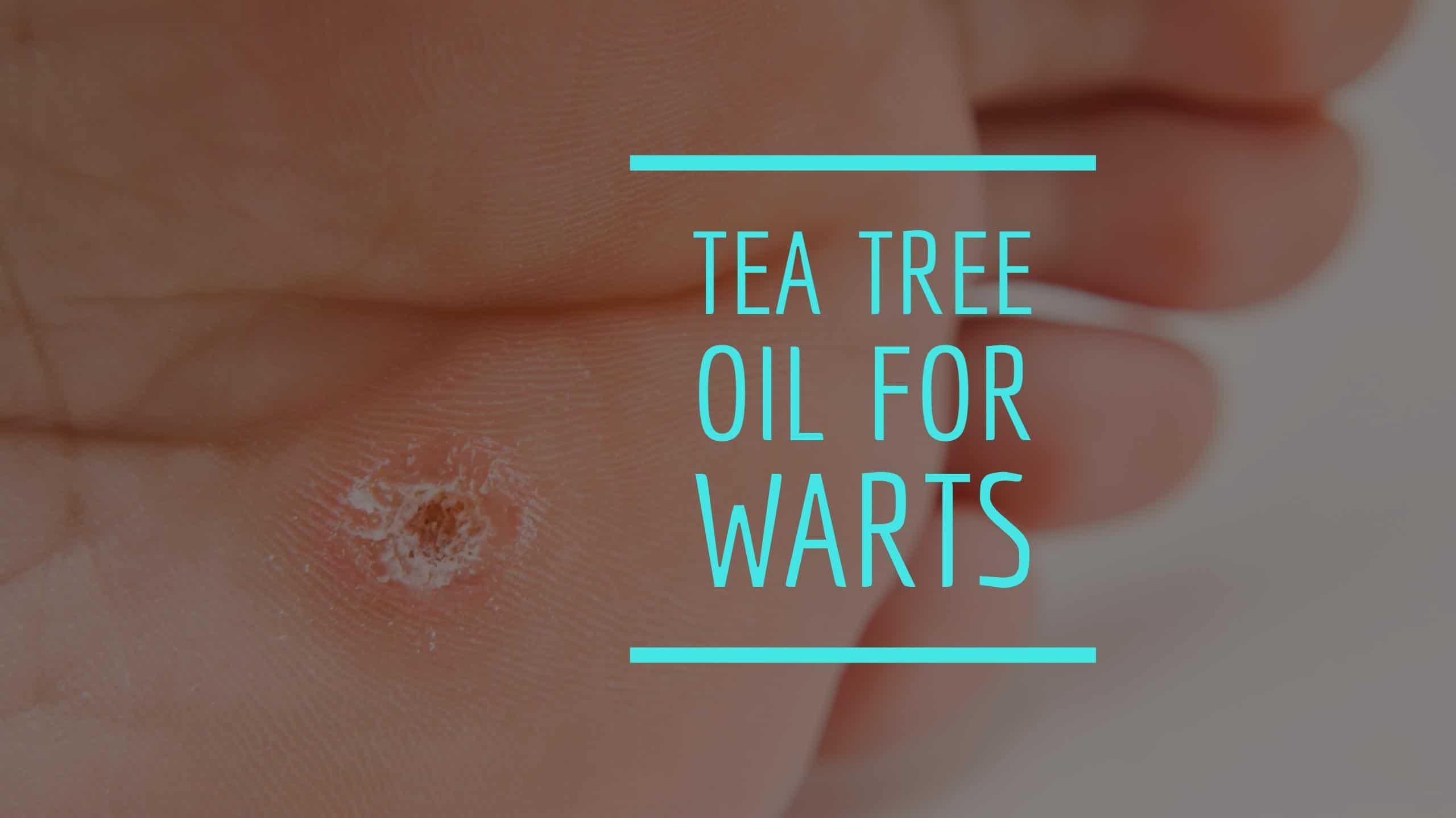 wart treatment tea tree oil