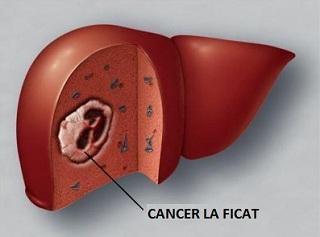 Radioembolizare pentru Cancer de Ficat Primar si Metastatic