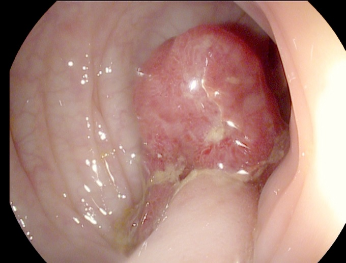 polipi, cancer colorectal