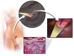 cancer ulcere mamelon cancer na urina