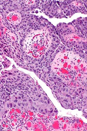 papillary urothelial lesion