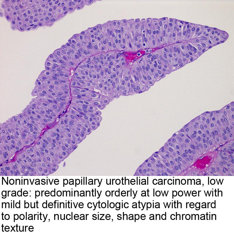 papillary urothelial carcinoma immunohistochemistry cancer endometrial ecografia